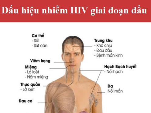 Những dấu hiệu nhiễm hiv giai đoạn đầu